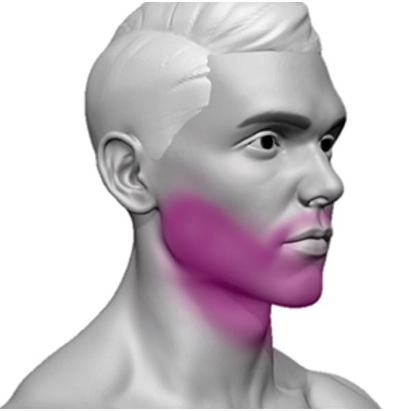 Depilação A Laser Barba Completa Giolaser - 10 Sessões