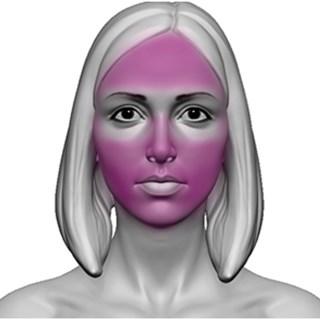 Depilação A Laser Face Giolaser - 10 Sessões