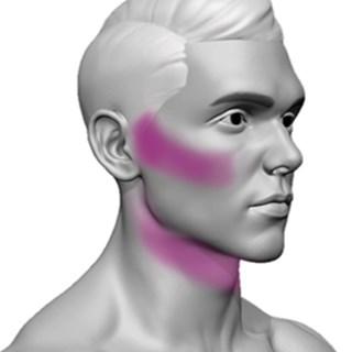 Depilação A Laser Faixa De Barba Giolaser - 10 Sessões
